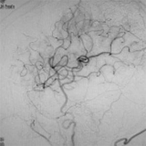 バイパス術で増加した脳血管
