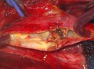 頚動脈狭窄部の血管を切開、露出